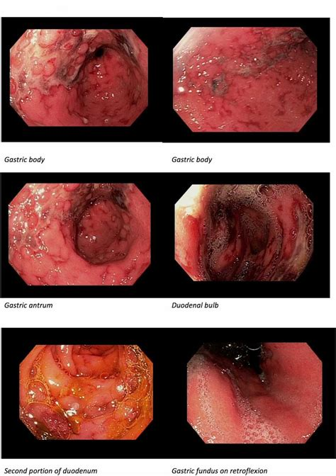 Gastric and duodenal ischaemia after transarterial