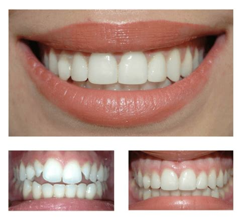 Composite Veneers   We compare safety, durability