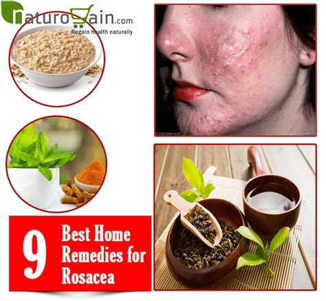 19 Best Home Remedies for Rosacea That Give Fast Relief