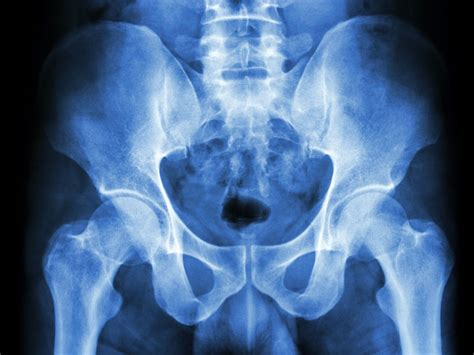 X-Ray of the Pelvis: Purpose, Procedure, and Risks