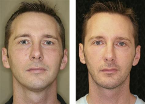 Laser Skin Resurfacing Fort Lauderdale | Before And After