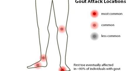 Uric acid and seven ways to reduce it   GOQii