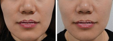 Jawline Botox injections for slimming, bruxism, teeth