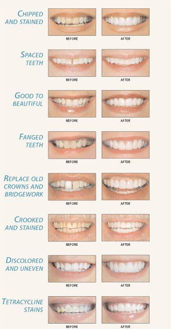 Tooth Bonding can help correct many different smile